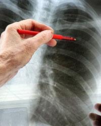 Туберкулез. Лечение. Симптомы.