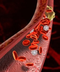 Тромбозы и эмболия