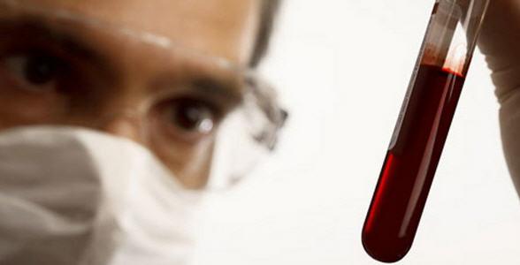 Гепатит - народные методы лечения