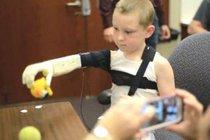 Активисты со всего мира создали самый дешевый бионический протез руки