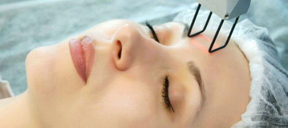 Несколько слов о лазерной шлифовке кожи