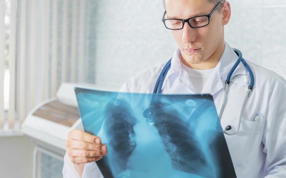 Как диагностируют рак легких?