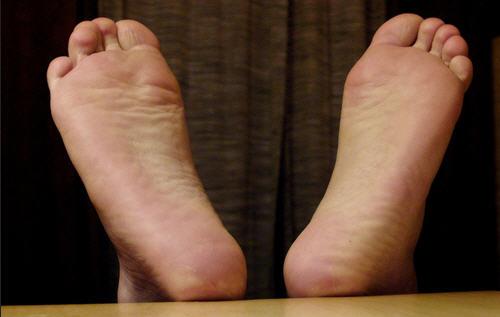 Грибок кожи, симптомы