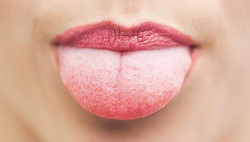 Рак языка: причины, симптомы, виды и лечение