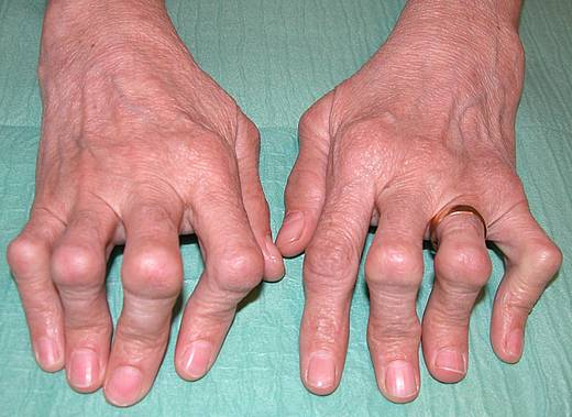 Артрит: симптомы, диагностика, лечение