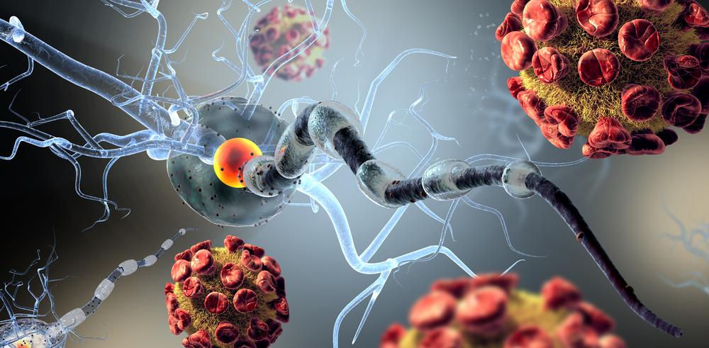 Рассеянный склероз, как проявляется, как лечится?