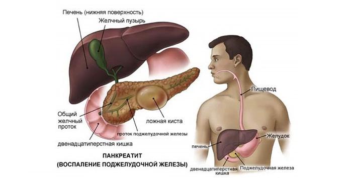 Симптомы и как лечить воспаление поджелудочной