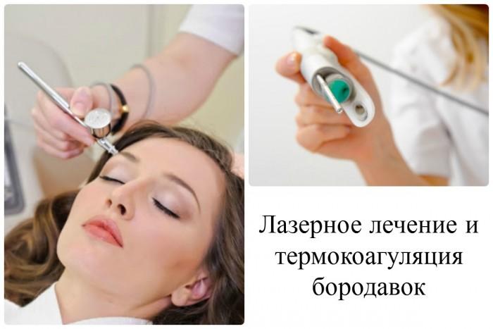Способы лечения (удаления) бородавок