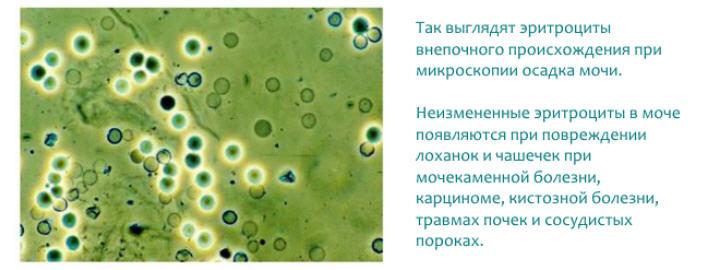 Эритроциты в моче.