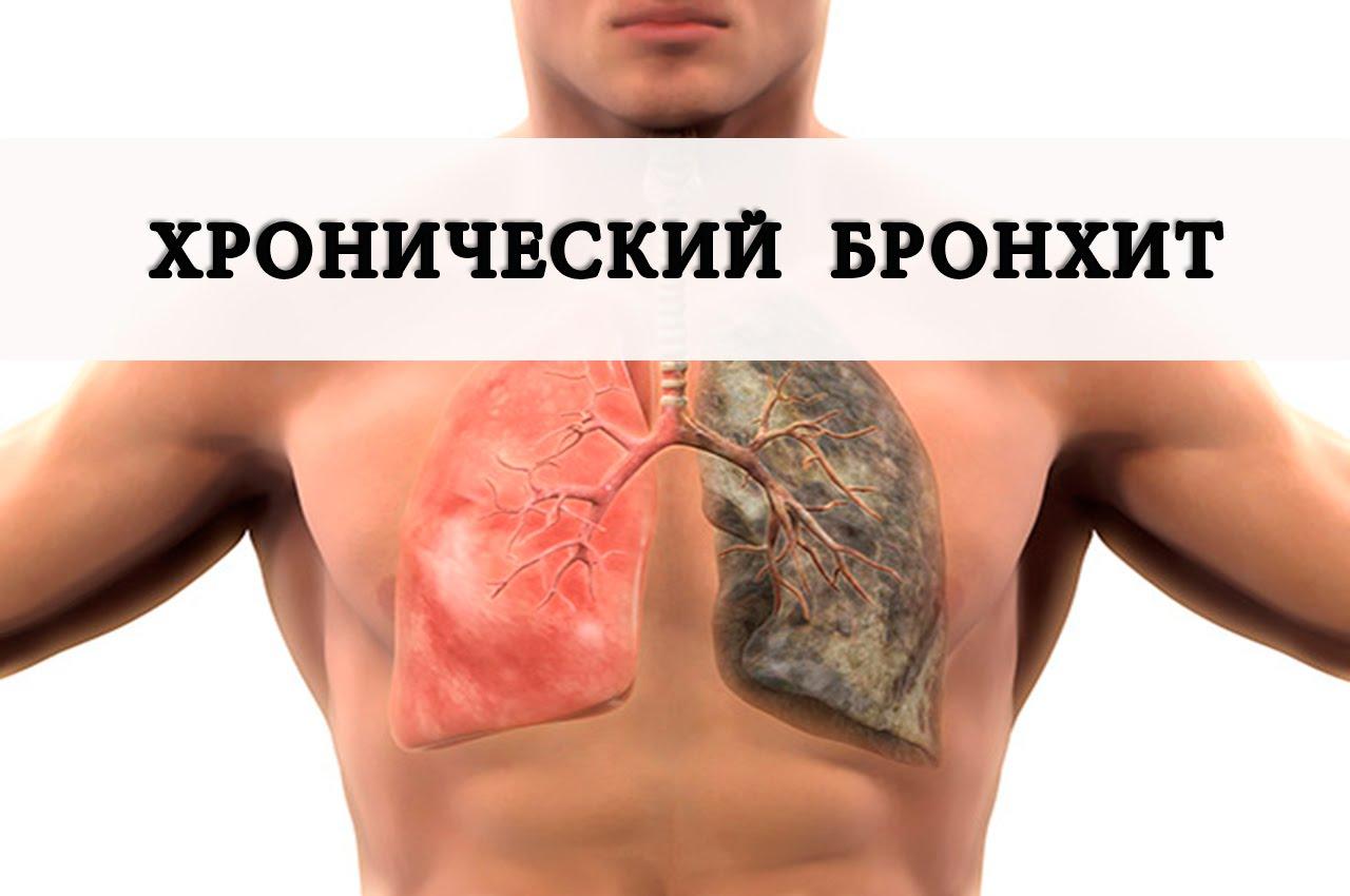 Воспаление бронхов: причины, симптомы острого бронхита