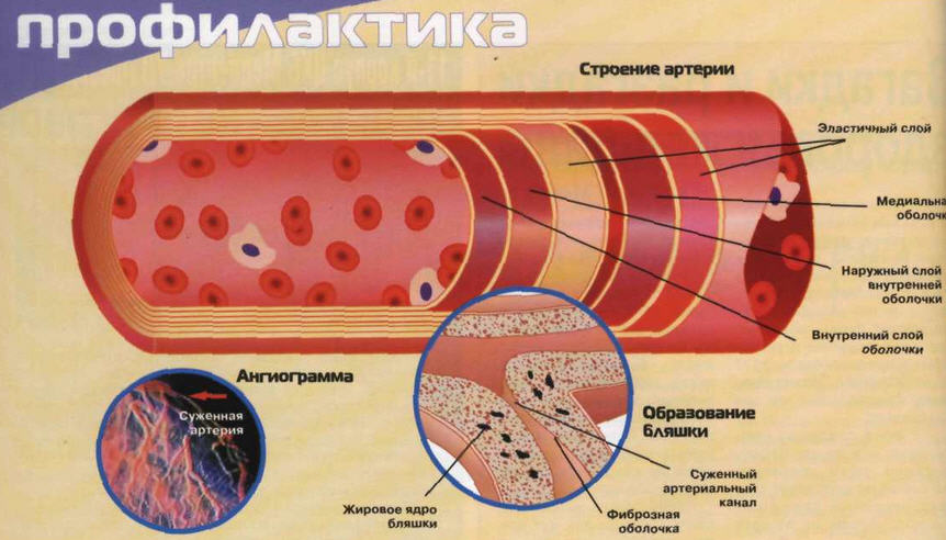 Атеросклероз: причины признаки лечения профилактика
