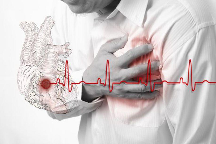 Как сделать что бы остановилось сердце 725
