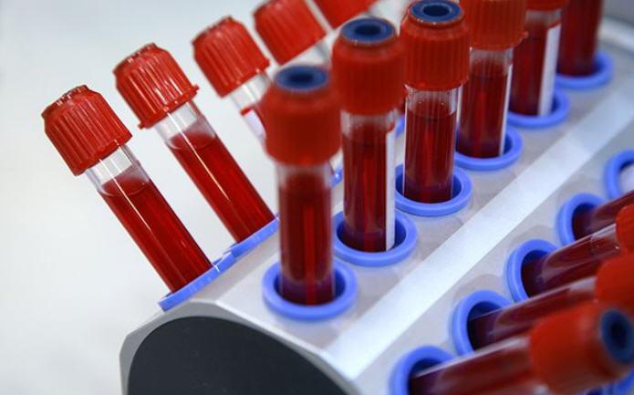 Биохимия крови. Часть 9.