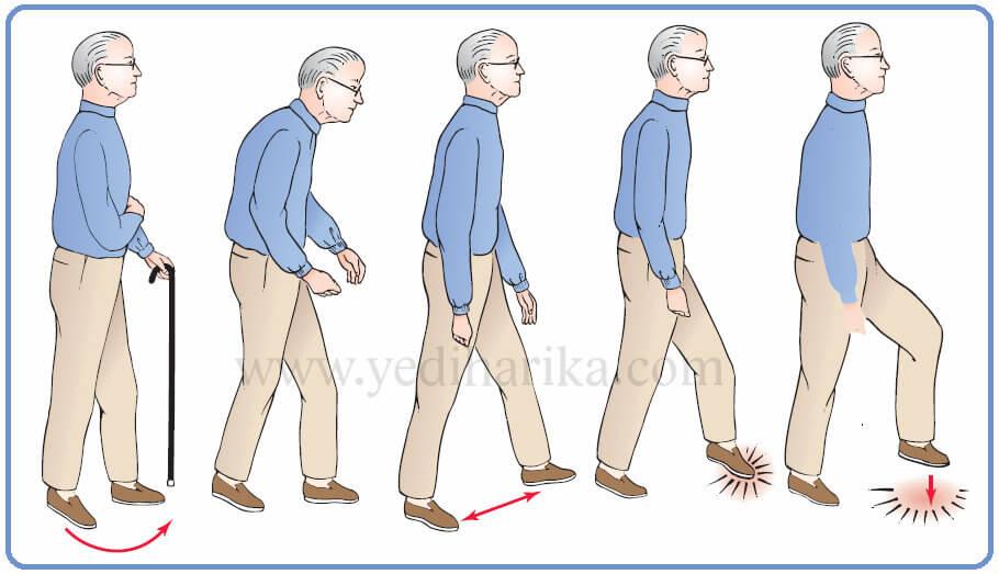 Что такое болезнь Паркинсона