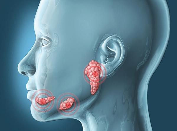 Ксеростомия: причины, симптомы, лечение