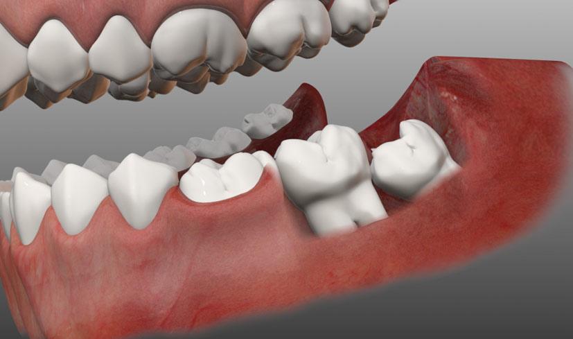 Зуб мудрости растёт и болит десна - можно ли обойтись без удаления