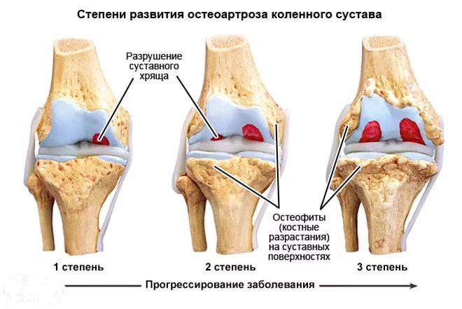 Симптомы и лечение деформирующего остеоартроза