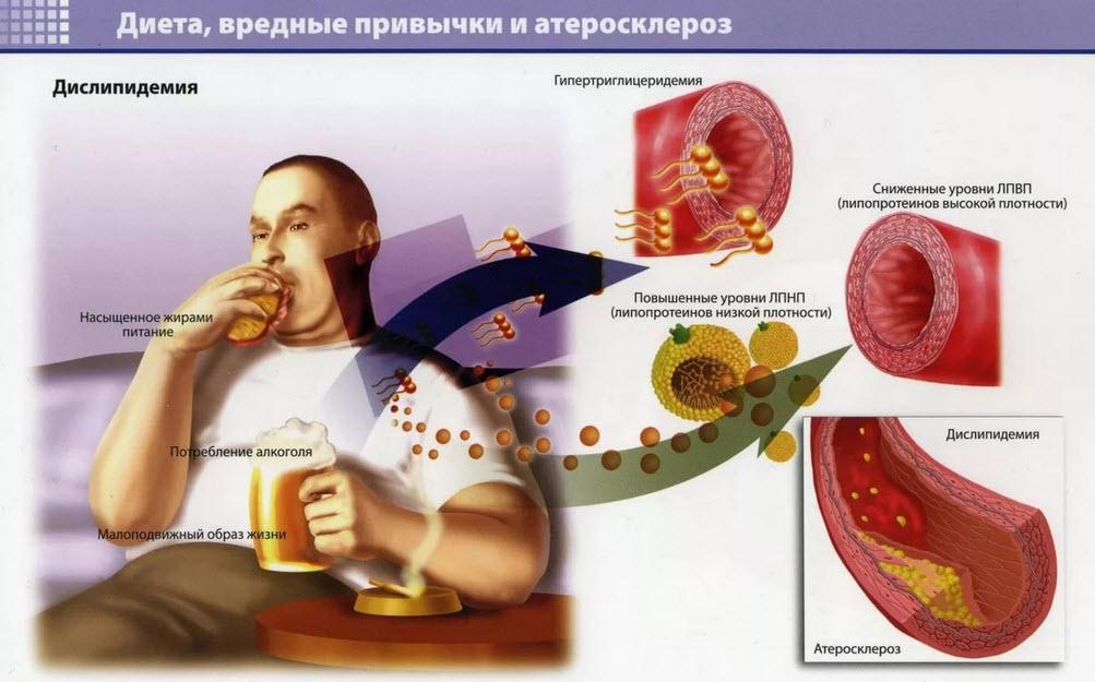 Атеросклероз - причины возниконовения, методы борьбы