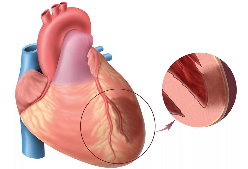 Нервная система и инфаркт миокарда