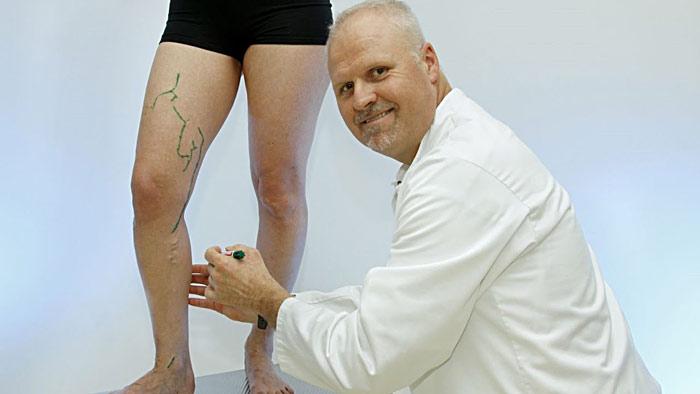 Варикоз на ногах – основные причины, первые признаки