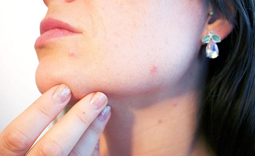 Фурункулёз - первые симптомы, виды, осложнения и последствия фурункулёза
