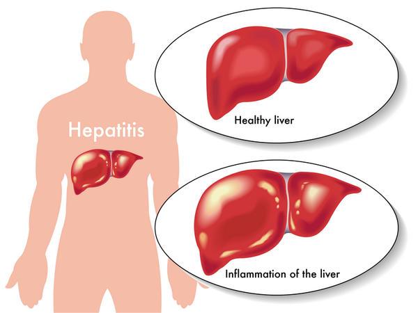 Гепатит В (воспаление печени)