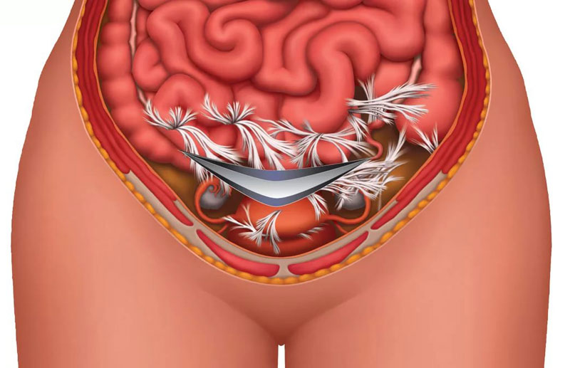 Почему образуются спайки в кишечнике