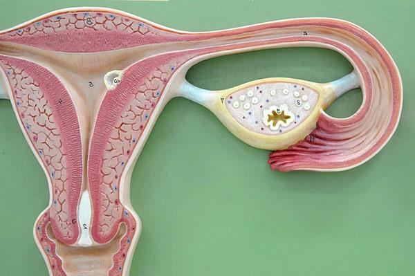 лечения эндометриоза матки