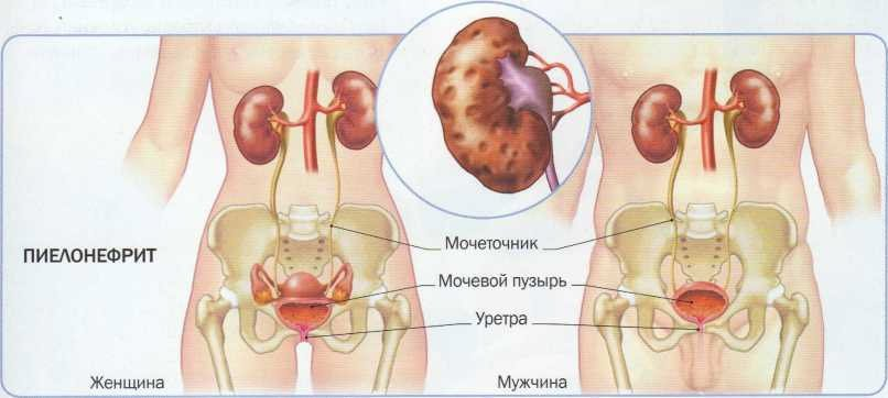 Как вылечить хронический пиелонефрит
