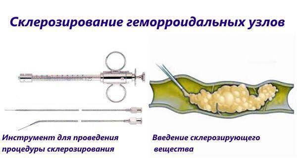 Лечение сосудов нижних конечностей при диабете