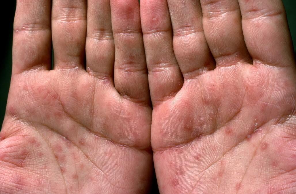 Сифилитическая сыпь на ладонях