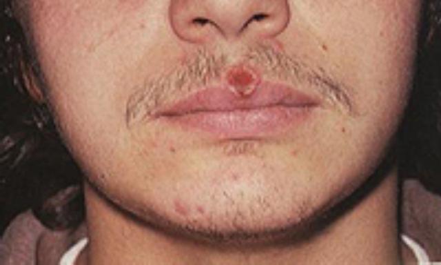 Появление сыпи при сифилисе