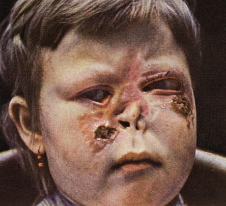 Некротический распад тканей при сифилисе