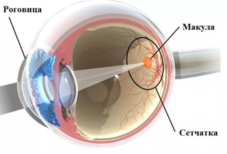 Как лечить отслоение сетчатки глаза
