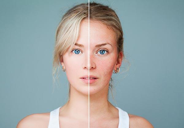 Дефицит мелатонина приводит к раннему старению