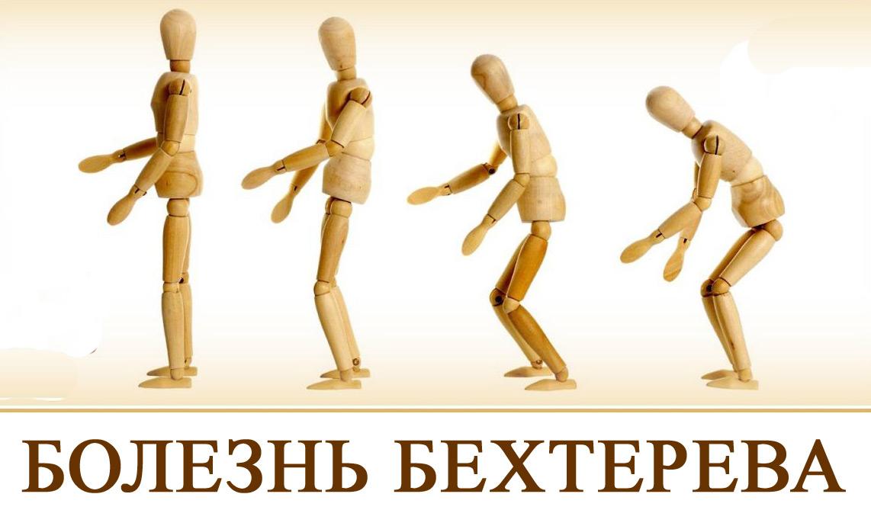 Болезнь Бехтерева - причины возникновения, симптомы и лечение