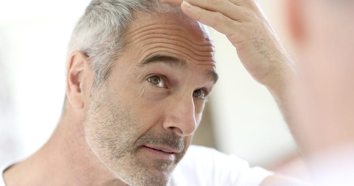 Выпадение волос – не приговор