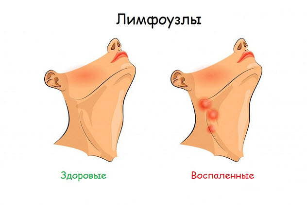 лимфаденит лимфоузлы