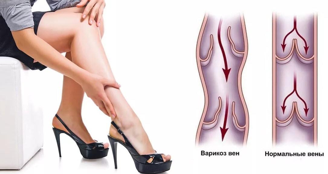 Варикозное расширение вен, основные симптомы и лечение